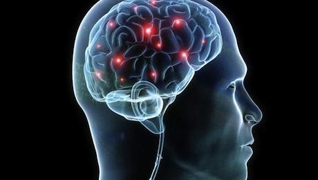 Chip Tiruan Otak Manusia di Kembangkan IBM