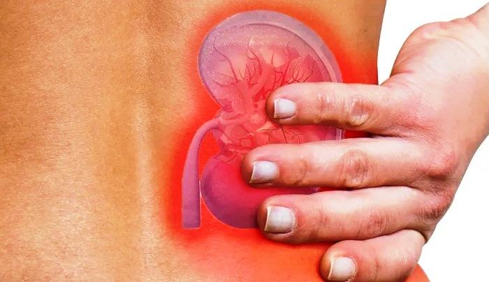 Cara Deteksi Dini Penyakit Gagal Ginjal Kronik?